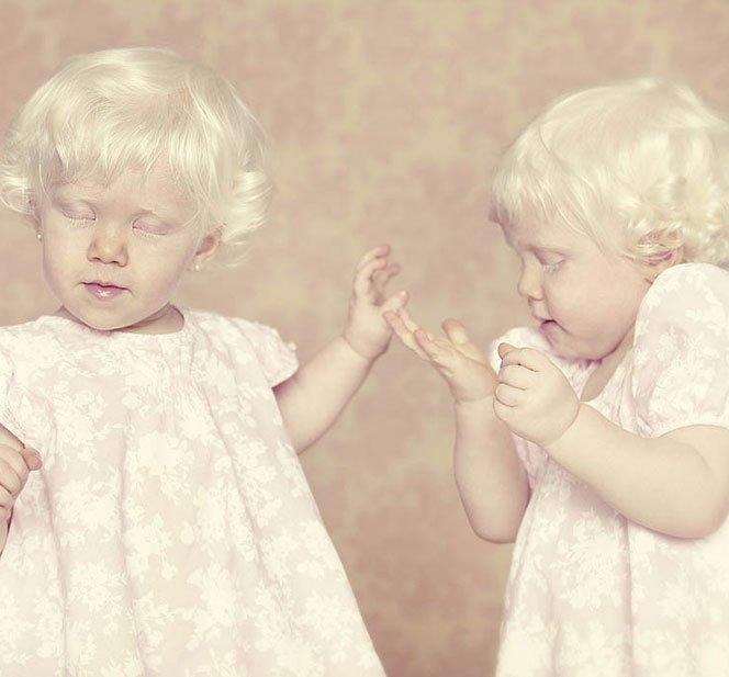 Albinos retratados por Gustavo Lacerda