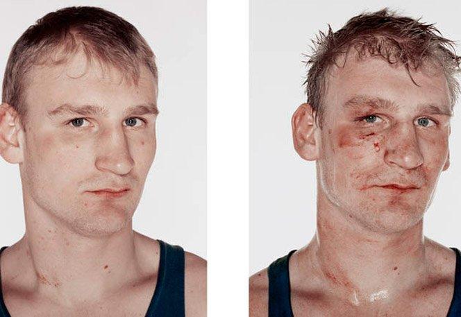 Boxeadores antes e depois das lutas