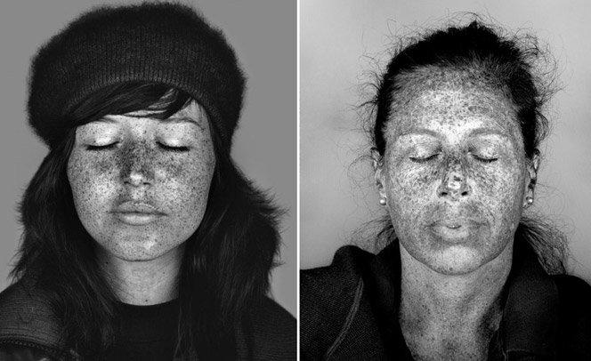 Luz ultravioleta revela imperfeições na pele que não gostaríamos de ver