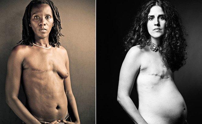 Fotógrafo mostra o que as campanhas contra câncer de mama escondem