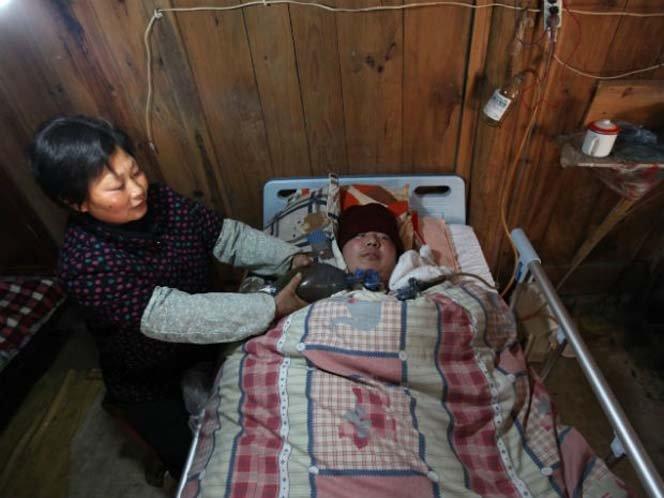 Casal mantém filho vivo bombeando um dispositivo ressuscitador 24h por dia