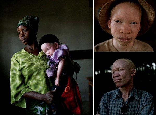 A dura realidade dos albinos africanos que são perseguidos por serem brancos