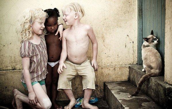 Fotógrafo registra filhos albinos de uma família negra que vivem fugindo da luz