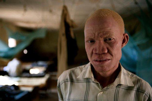 albinos2