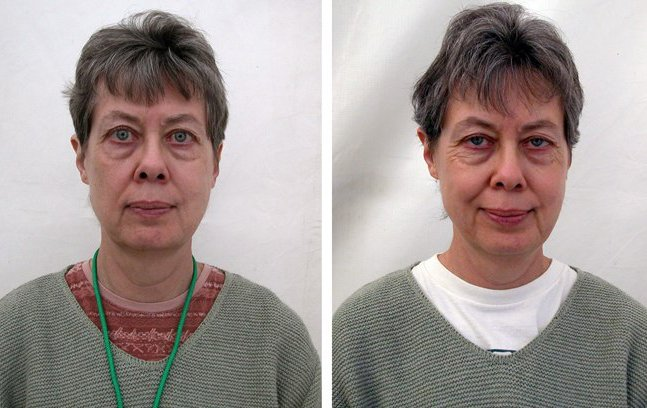 Ensaio mostra pessoas antes e depois de começarem a praticar meditação