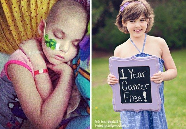 Cientistas curam leucemia de uma criança injetando nela o vírus da Aids