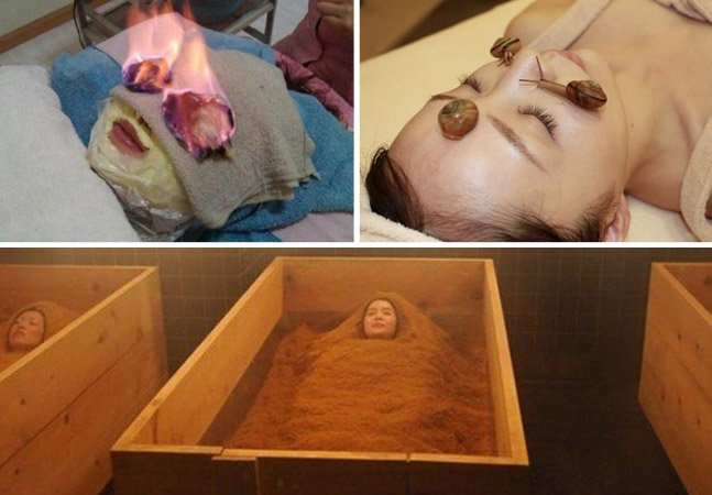 3 tratamentos bizarros que as pessoas fazem pra ficar mais bonitas