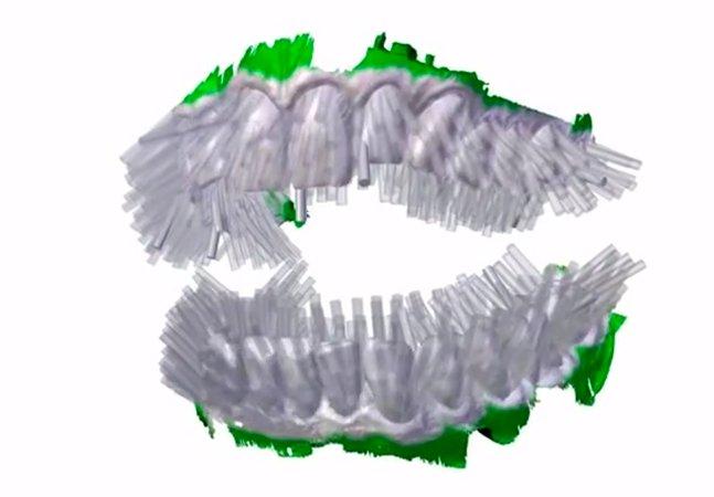 Escove seus dentes em 6 segundos com essa escova 3D