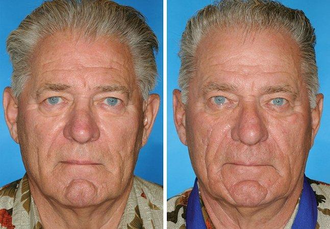 Série fotográfica compara gêmeos fumantes e não fumantes