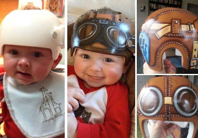 Artista pinta capacetes corretivos para bebês transformando-os em divertidas obras de arte