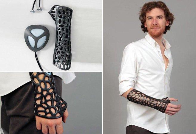 O gesso do futuro promete revolucionar o tratamento de ossos quebrados
