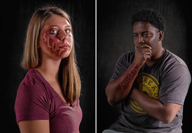 Ensaio fotográfico chocante mostra as marcas deixadas no corpo pelos abusos verbais