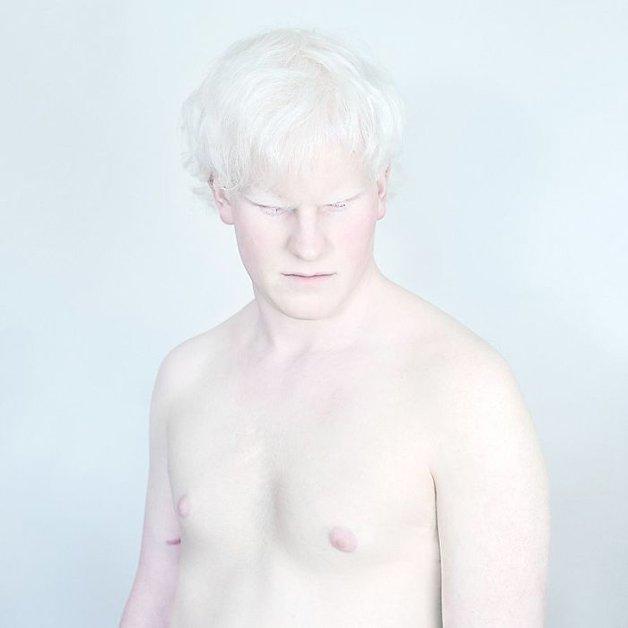 Fotógrafa retrata albinos