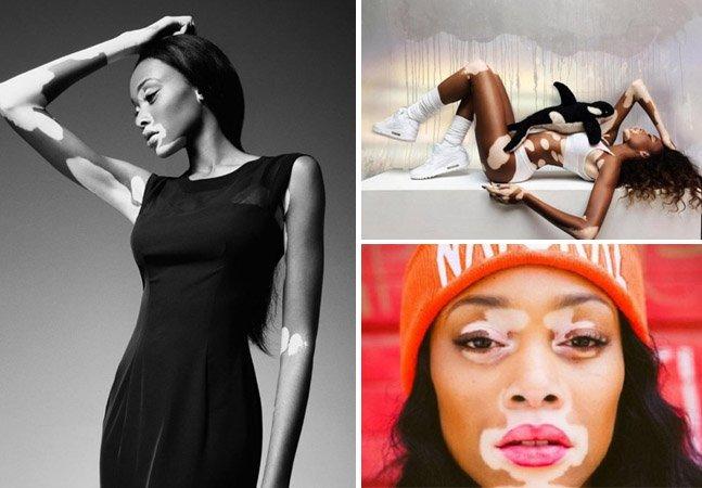 Nem uma doença grave de pele impediu essa jovem de se tornar uma modelo de sucesso mundial