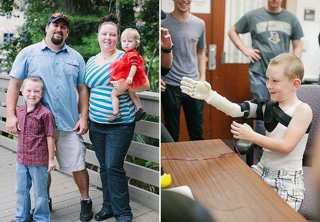 Garoto pode finalmente abraçar os pais com ajuda de braço feito com impressora 3D
