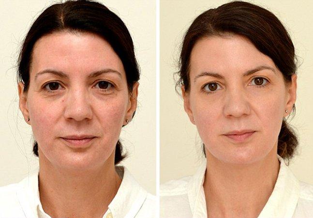 Mulher mostra as mudanças no rosto depois de passar a beber 3 litros de água por dia