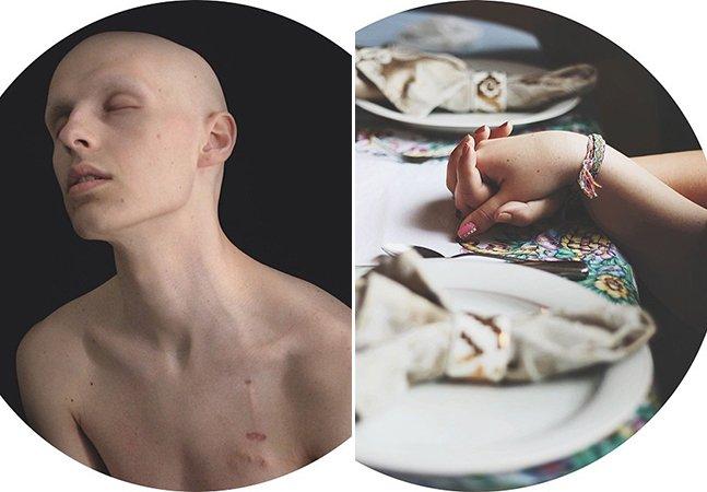 Jovem registra no Instagram sua batalha contra o câncer