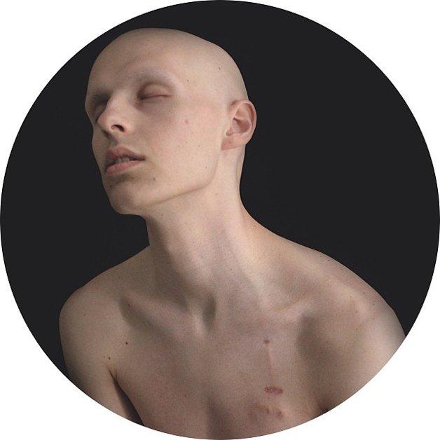 instagram-cancer13