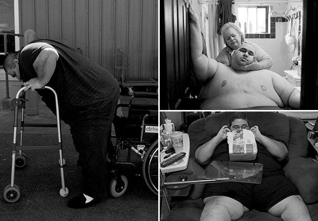 Série fotográfica mostra o lado da obesidade que pouca gente vê