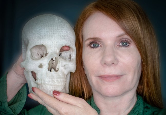 Homem usa impressão 3D para salvar a visão da esposa