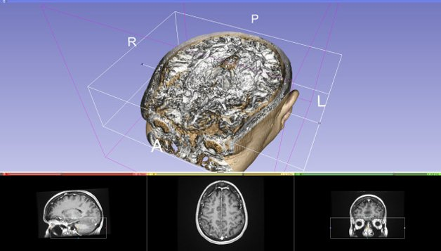 tumor-3D2