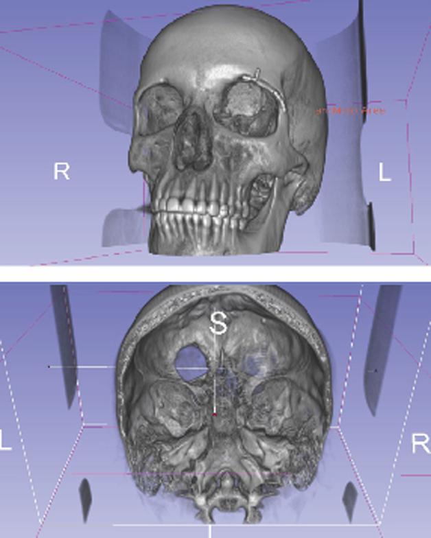 tumor-3D3