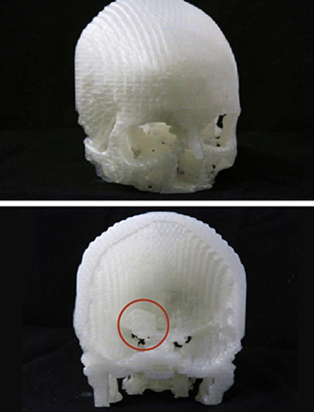 tumor-3D4
