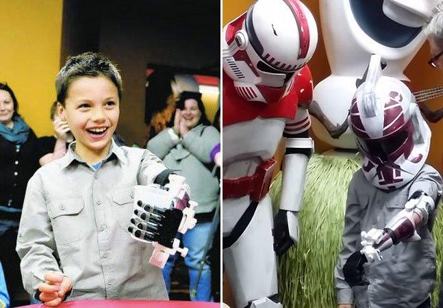 Garoto de 7 anos ganha prótese inspirada em Star Wars feita com impressora 3D