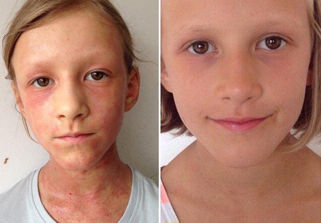 Mãe cura doença de pele crônica da filha somente através da alimentação