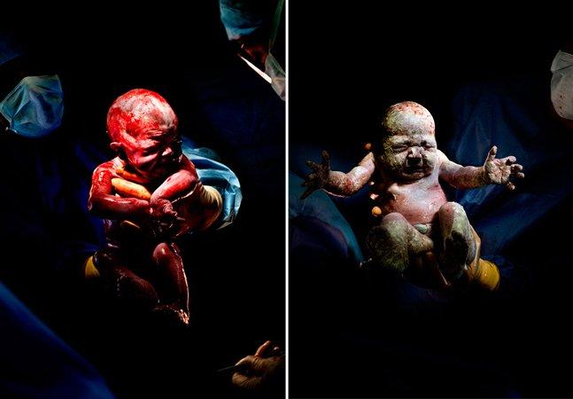 Ensaio fotográfico impactante mostra bebês logo após a cesárea