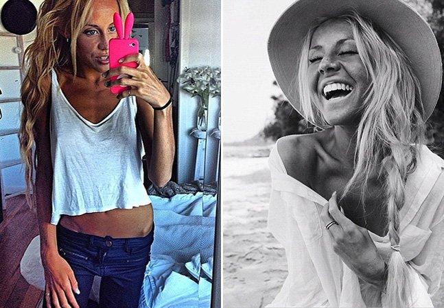 Ela perdeu peso para se parecer com uma modelo e agora luta contra anorexia