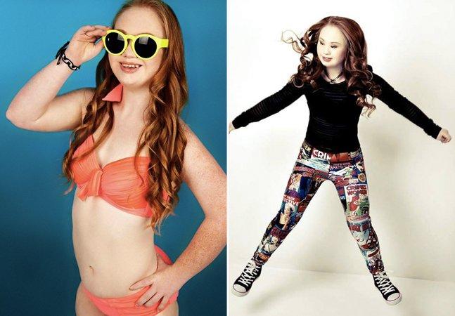 A garota com síndrome de Down que está tentando quebrar preconceitos e fazer carreira como modelo