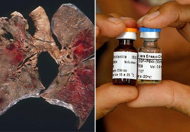 Cuba desenvolve a primeira vacina de câncer de pulmão do mundo