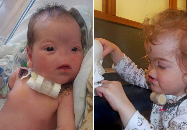 Garota que nasceu sem nariz ganha prótese feita em impressora 3D