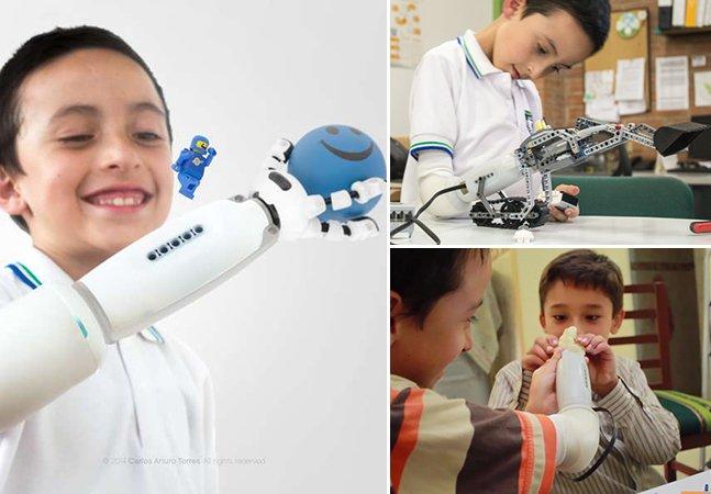 Prótese de braço inovadora permite que crianças deficientes customizem seus braços com LEGO