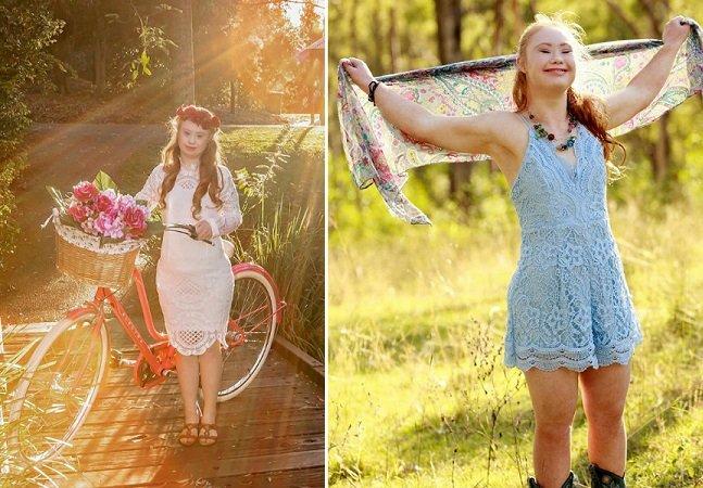 Garota com Síndrome de Down assina seu primeiro contrato como modelo