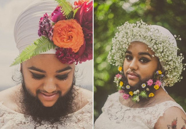 Com distúrbio hormonal, inglesa com barba desafia estereótipos de beleza