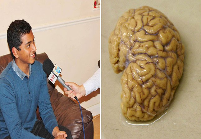 Jovem de 15 anos desenvolve teste que permite detectar Alzheimer 10 anos antes dos primeiros sintomas