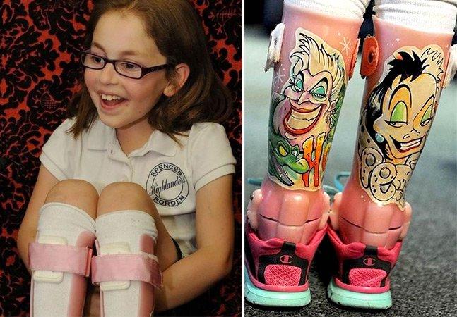 Tatuagem de vilãs da Disney faz garota se sentir melhor com sua prótese