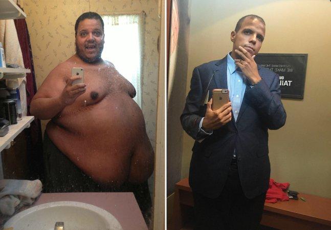 A jornada do homem que pesava mais de 300 kg e conseguiu emagrecer sem cirurgia