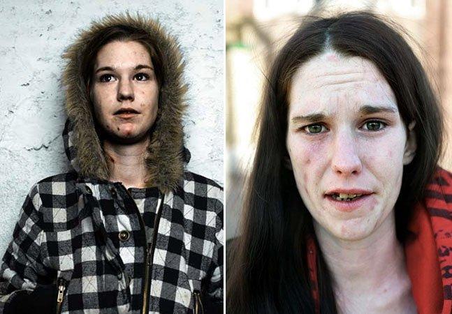 Série de fotos impactante mostra a luta diária de uma viciada em heroína