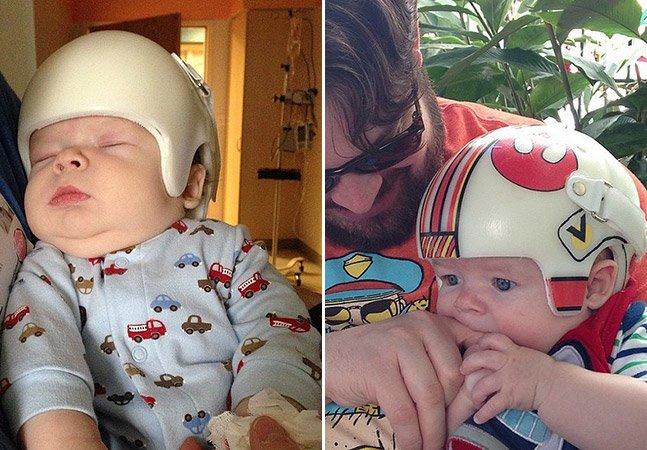 Pai decora capacete corretivo do filho com arte do star wars