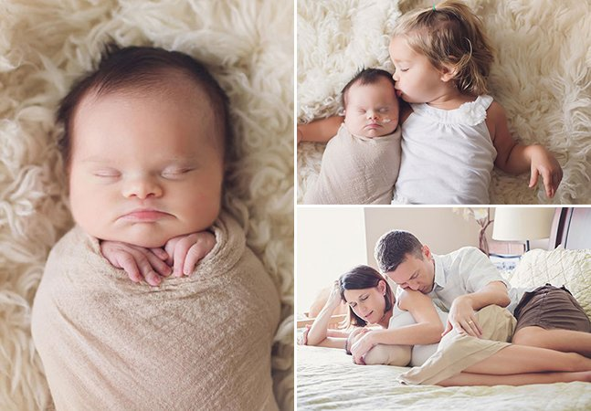 Pais fazem ensaio comovente para bebê com tumor cerebral inoperável