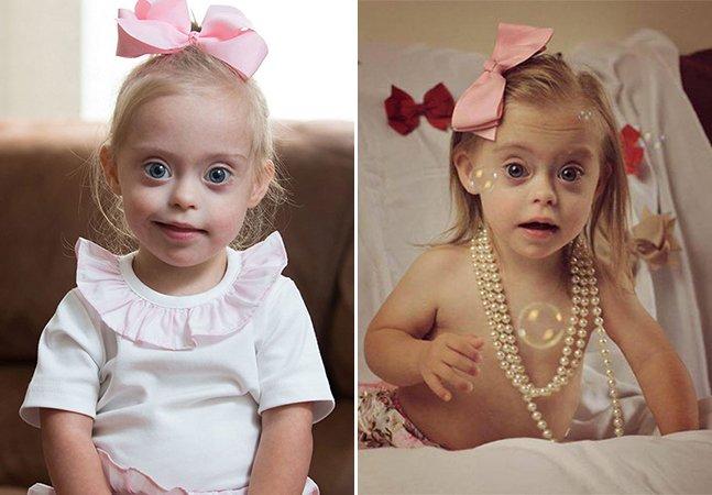 Menina de 2 anos com Síndrome de Down e sorriso encantador ganha contrato como modelo
