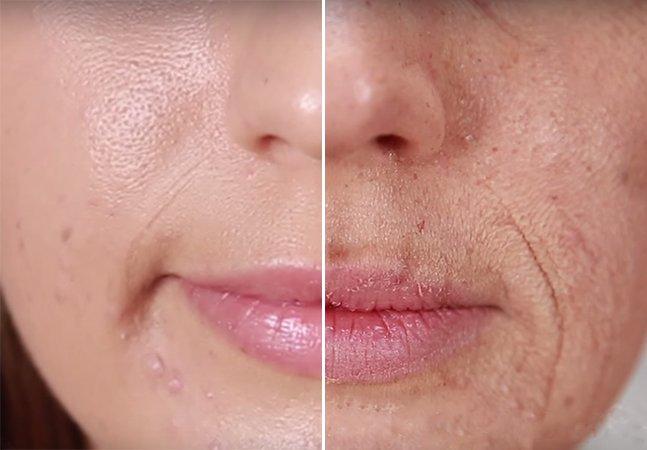 Vídeo mostra o que acontece com a pele de um fumante ao longo dos anos