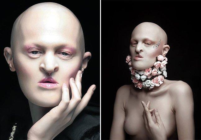 A modelo com uma doença genética rara que está quebrando barreiras no mundo da moda