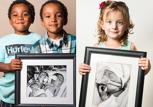 """Fotógrafo retrata o """"antes e depois"""" de crianças que nasceram prematuras"""