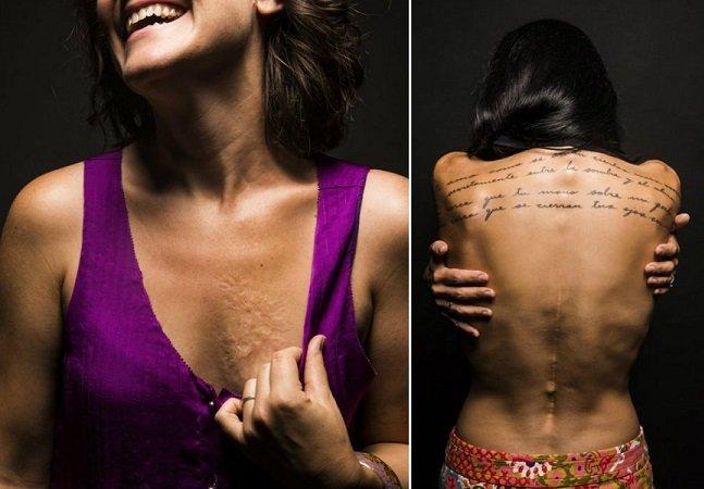 Projeto mostra a beleza das imperfeições ao contar histórias de mulheres e suas marcas no corpo
