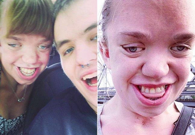 Jovem com doença genética rara  promove o amor próprio com fotos inspiradoras