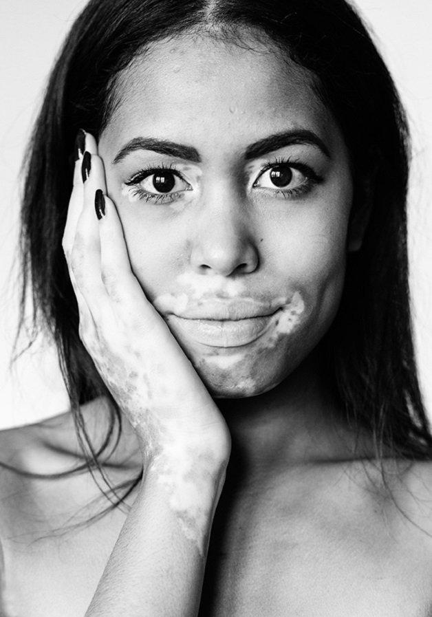 vitiligo7